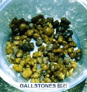 Uleiul de măsline elimină pietrele de la vezica biliară şi pe cele de la bilă